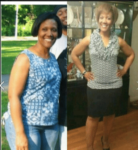 TMHS Angela before & after